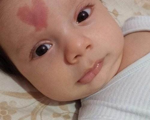 В Турции родился ребенок с меткой в виде сердца на лбу (ФОТО)