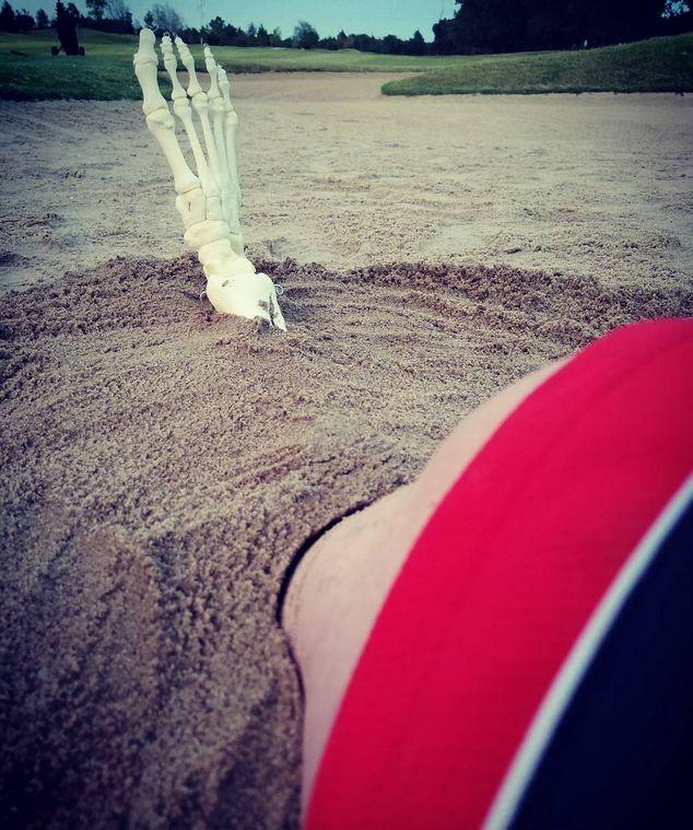 Девушка завела Instagram для своей ампутированной ноги (ФОТО)