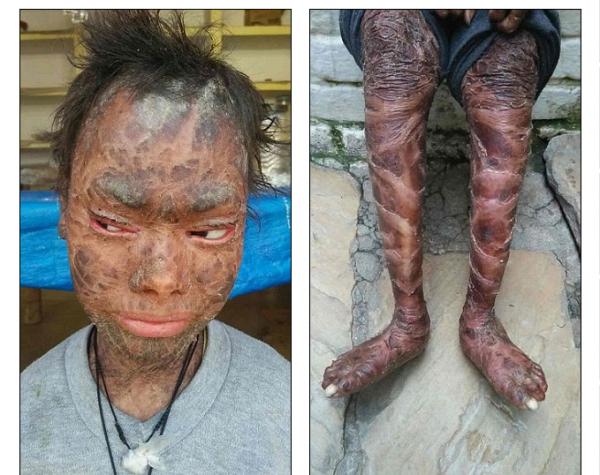 «Девочка-змея» из Индии сбрасывает кожу каждые 45 дней