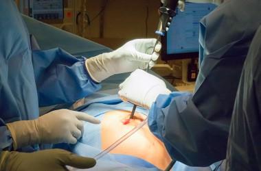Хирурги нашли опухоль с мозгом в теле японской девочки