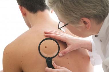 Ученые выяснили, почему родинки иногда развиваются в меланомы