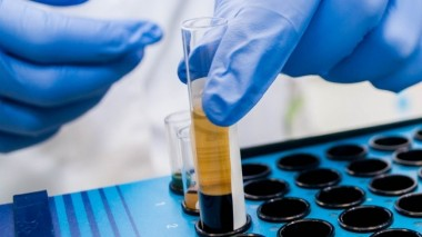 Биологи разработали способ определения рака по анализу крови