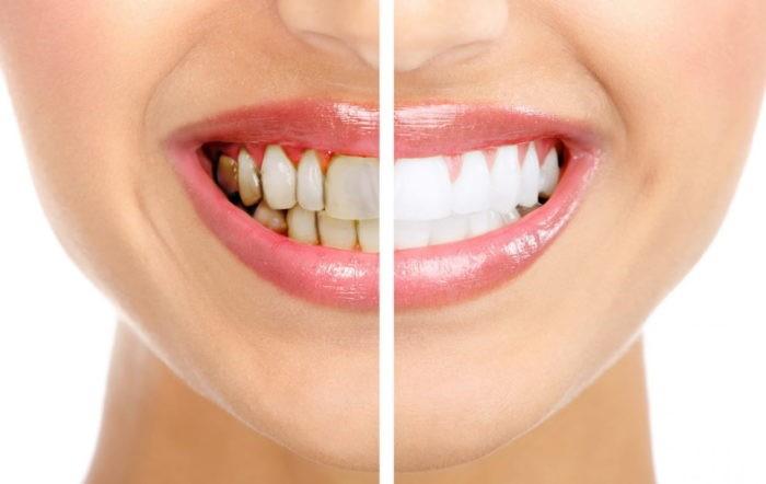 Медики: зубной налёт является признаком сахарного диабета