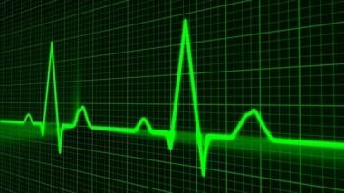 Ученые указали на основной симптом сердечного приступа