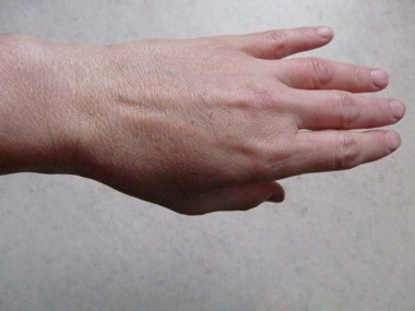 Врачи рассказали, почему появляются цыпки на руках