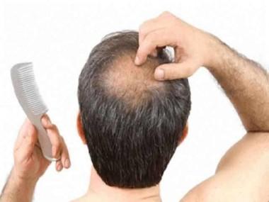 Чудо-кепка поможет мужчинам в борьбе с облысением