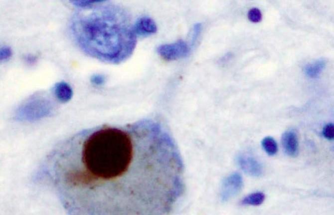 Ученые разгадали загадку белка, провоцирующего нейродегенеративные заболевания