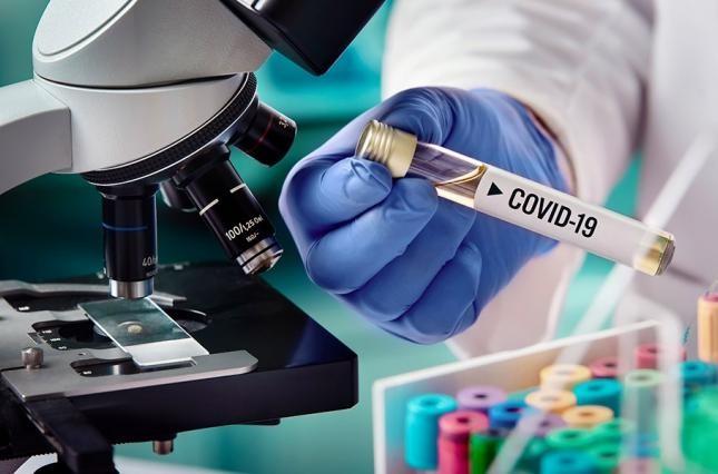 В Украине за сутки диагноз COVID-19 подтвердили у 648 украинцев