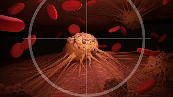 Названы первые признаки развития рака