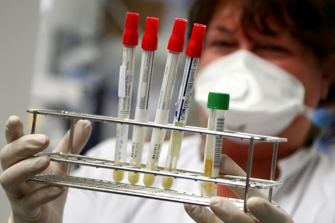 В Украине 1199 новых случаев коронавируса