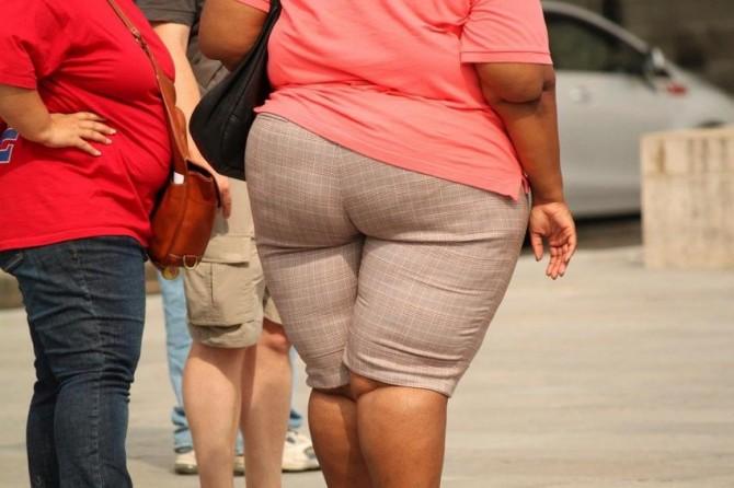 Ученые заявили о способности ожирения снижать пластичность мозга