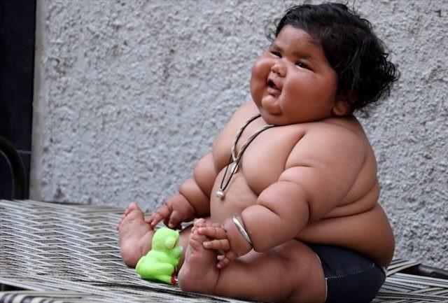 Сбои в системе вознаграждения мозга провоцируют детское ожирение