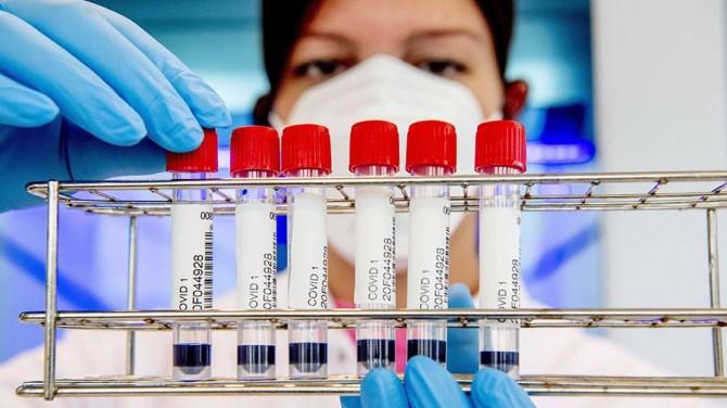 Ученые обнаружили опасное осложнение коронавируса