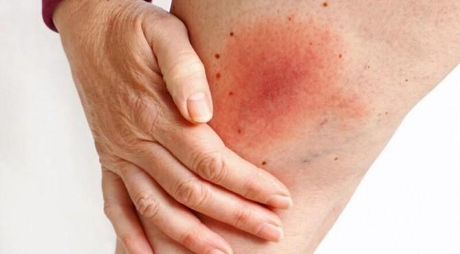 Определить болезнь Лайма можно с помощью селфи