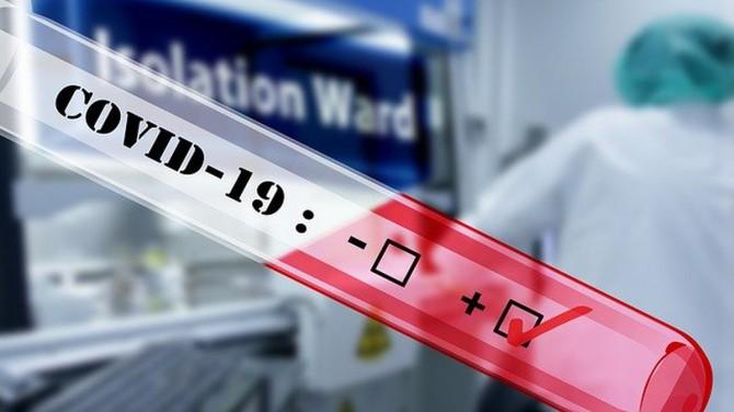 В Украине число заболевших на коронавирус за сутки составило 8752 случая