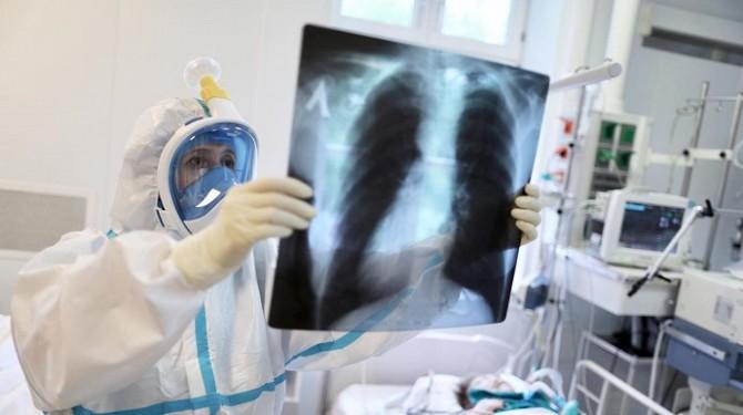 В Украине еще почти 5 000 новых случаев коронавируса