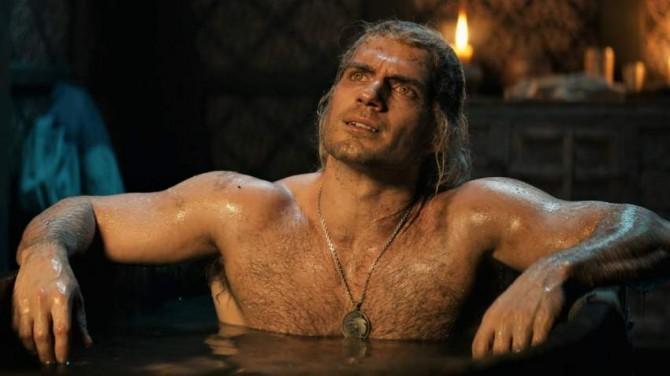 Генри Кавилл восстанавливается после травмы, полученной на съёмках «Ведьмака»