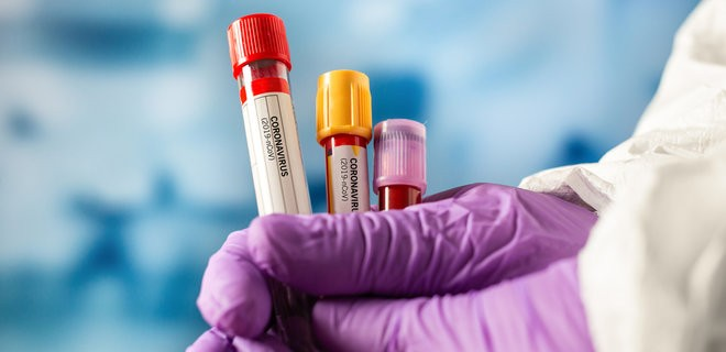 За сутки коронавирус в Украине обнаружили у 11833 человек, зафиксировано 289 летальных случаев