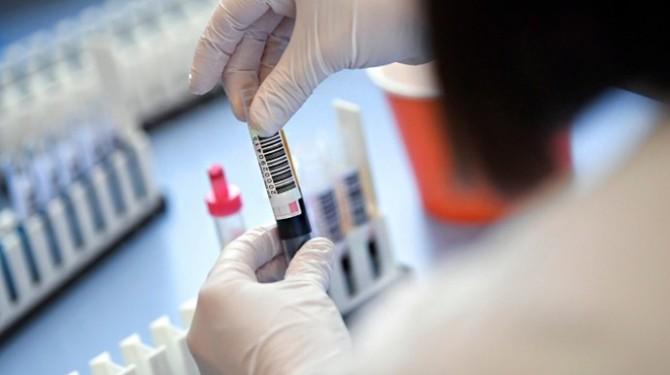 В Украине за сутки обнаружили 7235 случаев заболевания на коронавирус