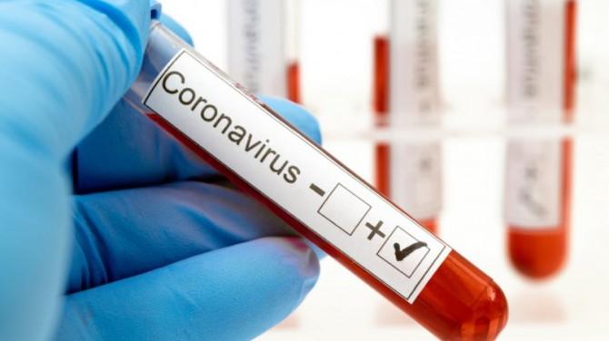 В Украине зафиксирован новый антирекорд по количеству инфицированных COVID-19