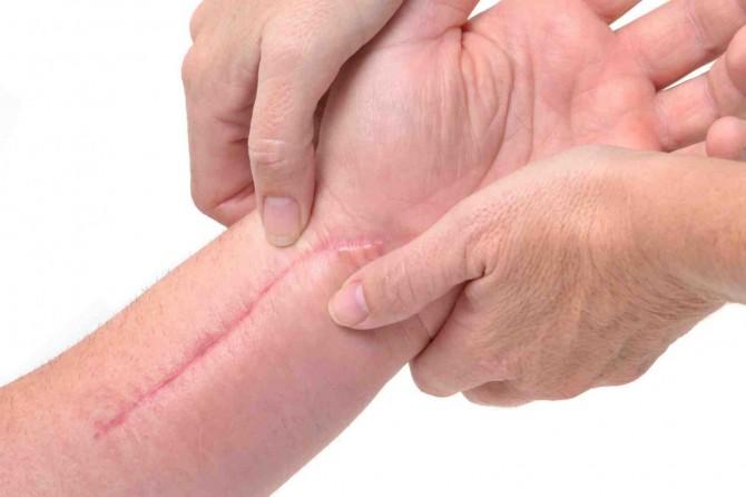 Американские ученые научились бесследно удалять шрамы