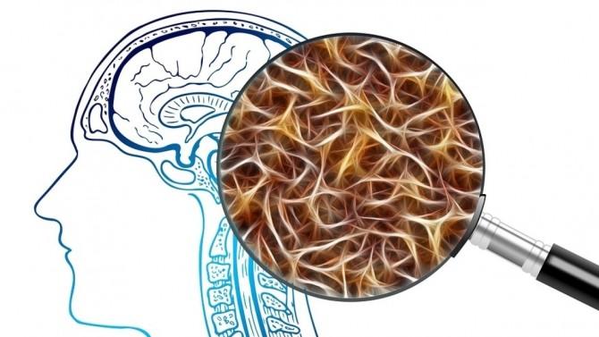 Ученые из США определили роль гиппокампа в принятии человеком решений
