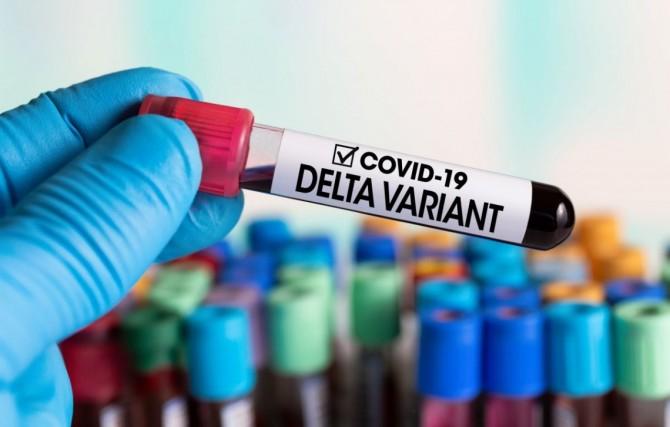 В Черниговской области обнаружили десять новых случаев инфицирования штаммом «Дельта»